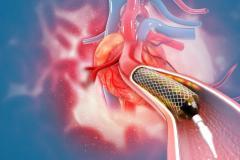 冠脉支架全国集采,微创医疗的下一个雷?